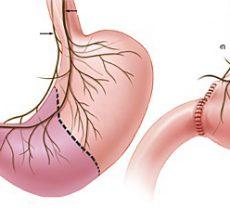 Последствия и диета после операции при язве желудка