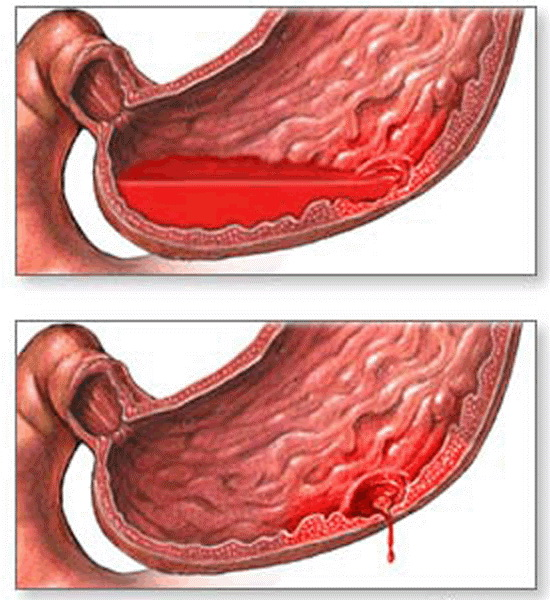 Кровотечения при язве желудка: симптомы, что делать?