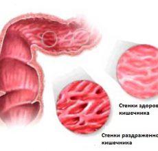 Способы лечения синдрома раздраженного кишечника народными средствами