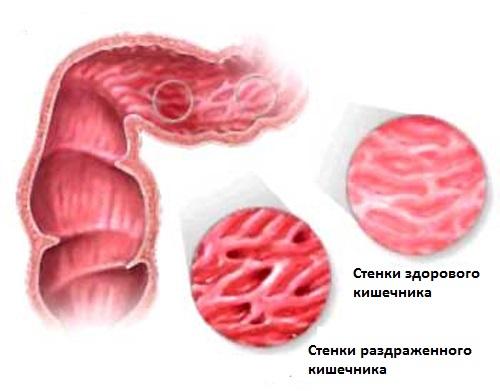 Синдром раздраженного кишечника у ребенка – как лечить?