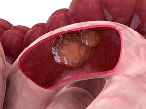 Рак тонкого кишечника: признаки и симптомы, диагностика