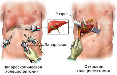 Удаление камней из желчного пузыря - что нужно знать об операции?