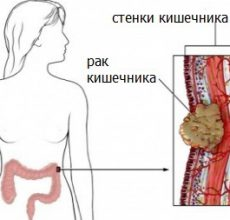 Диагностирование рака кишечника