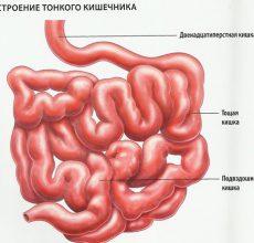 Заболевание раком тонкого кишечника — признаки и симптомы