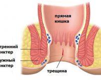 Причины боли в прямой кишке