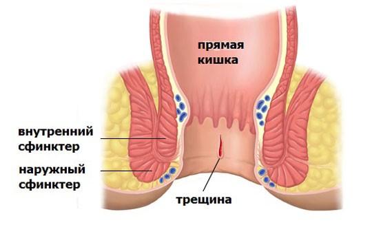 Трещина слизистой кишечника