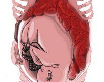 Основные причины жидкого стула при беременности