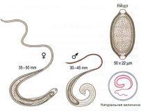 Признаки присутствия паразитов в организме человека