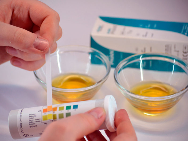 Тест на уровень ацетона в моче