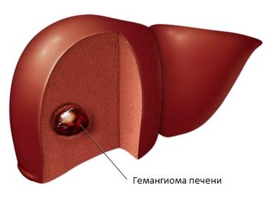 Неопасная для организма опухоль