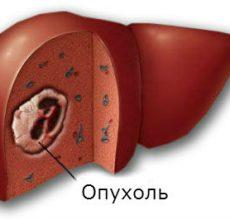 Симптомы и лечение опухоли печени