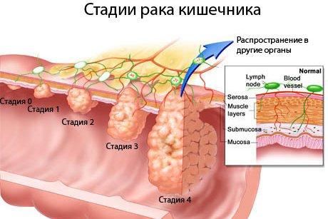 Развитие рака кишечника