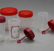 Подготовка и проведение анализа кала на скрытую кровь