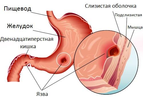Язва желудка может быть причиной кровотечений