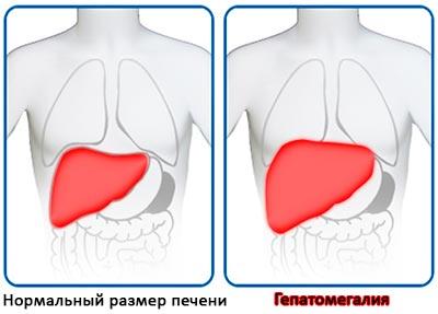 Увеличение размеров органа