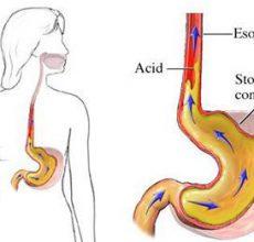Причины кислой отрыжки после еды