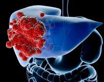 Соблюдение диеты при раке печени