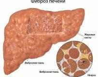 О фиброзе печени