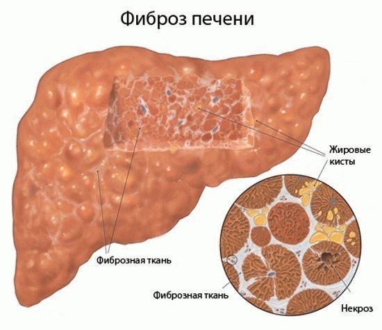 Заболевание органа