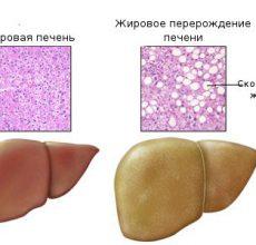 Виды гепатоза печени и способы его лечения