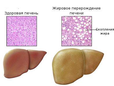 Отличия в строении здорового и пораженного органа