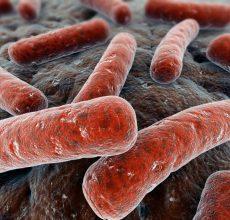 Что означает появление клебсиеллы в кале?