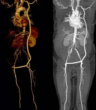Рентген с контрастом для определения кровотечения
