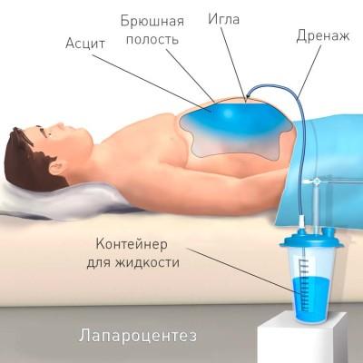 Процедура лапароцентез