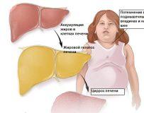 Чем опасно ожирение печени и как его лечить?