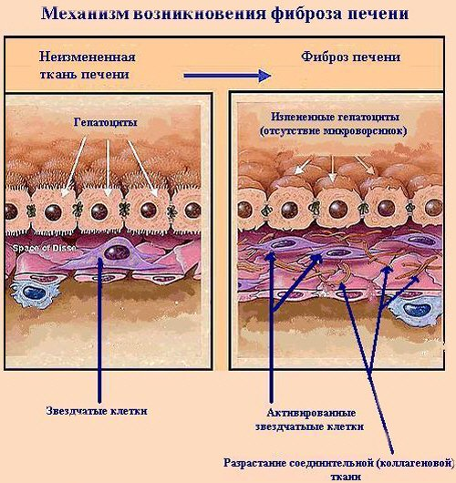 Возникновение фиброза