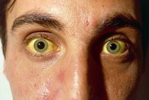 Пигментация глаз при гепатозе