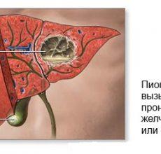 Диагностика и лечение абсцесса печени