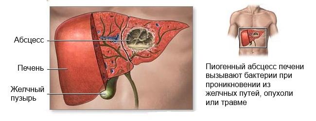 Дерматологические проявления при заболеваниях печени