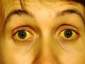 Как болит печень: симптомы, что делать в домашних условиях