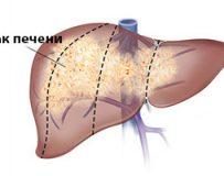 Признаки и диагностика рака печени