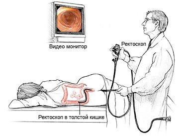 Процедура ректоскопии