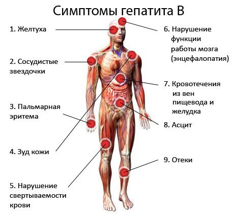 паразиты в почках человека