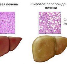 Симптомы и лечение стеатоза печени