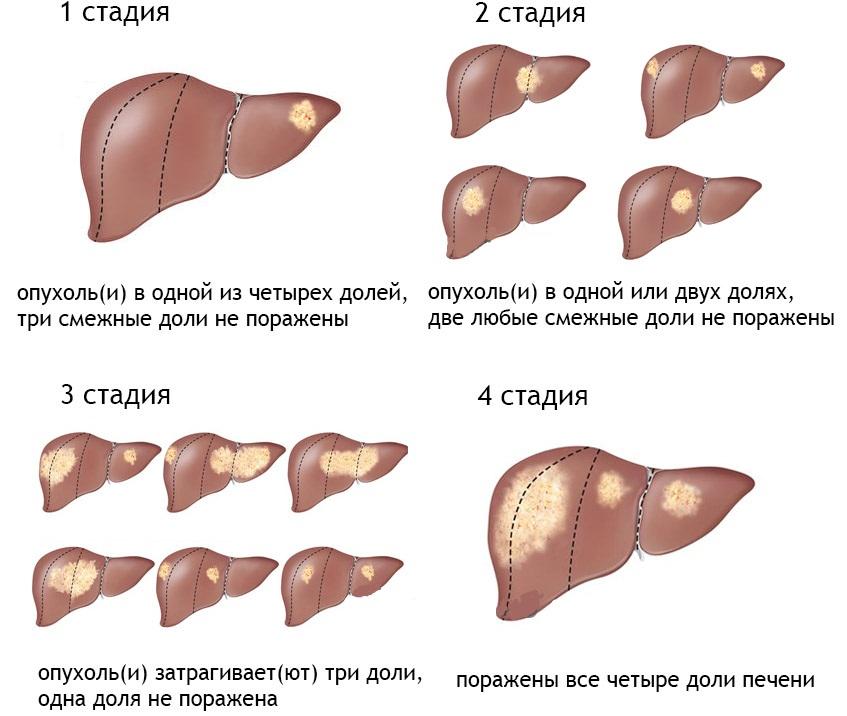Стадии болезни