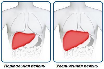 Размеры органа при гепатомегалии