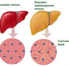 Профилактика и лечение жировой дистрофии печени