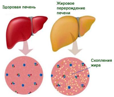 Лечение дженериком гепатита с